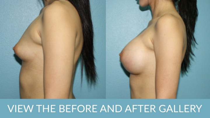 Breast Augmentation w/ Lift