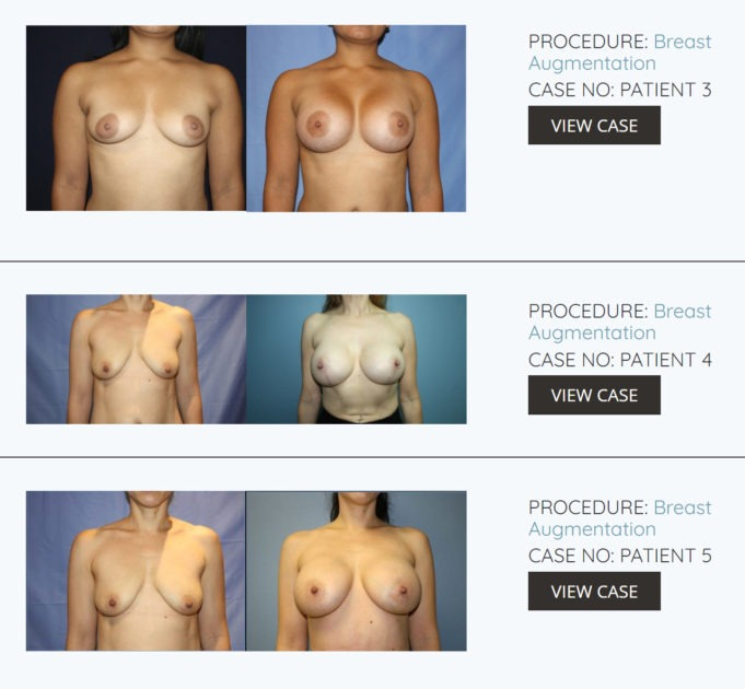 El Paso Plastic Surgeon Dr Marco Gonzales Breast Augmentation before after photos 681x630 - How much does breast augmentation plastic surgery cost? El Paso Texas
