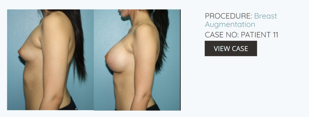 Breast Augmentation Surgery Before And After Photos el paso texas 1024x390 - Breast Augmentation Surgery Before And After Photos El Paso Texas